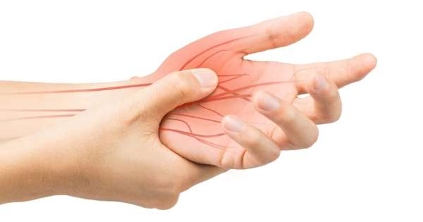 sindrom carpal tunnel